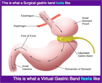 Virtual Gastric Band vs Surgical Gastric Band